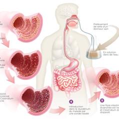 Clostridium - Transplantation fécale