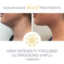 HIFU high intensty focused ultrasound jawline definition before and after