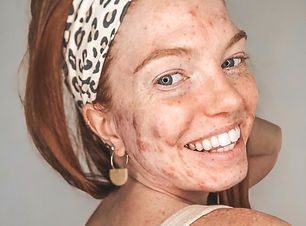 smiling acne positive girl