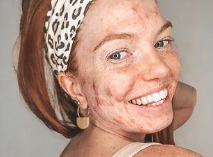 smiling acne positive girl