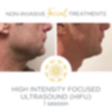 HIFU high intensty focused ultrasound jawline definition before and after for a male