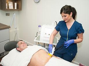 ultrasound lipocavitation treatment