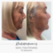 radiofrequency skin tightening face before and after
