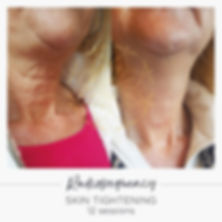radiofrequency skin tightening neck before and after