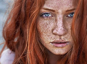 freckles and sun damage