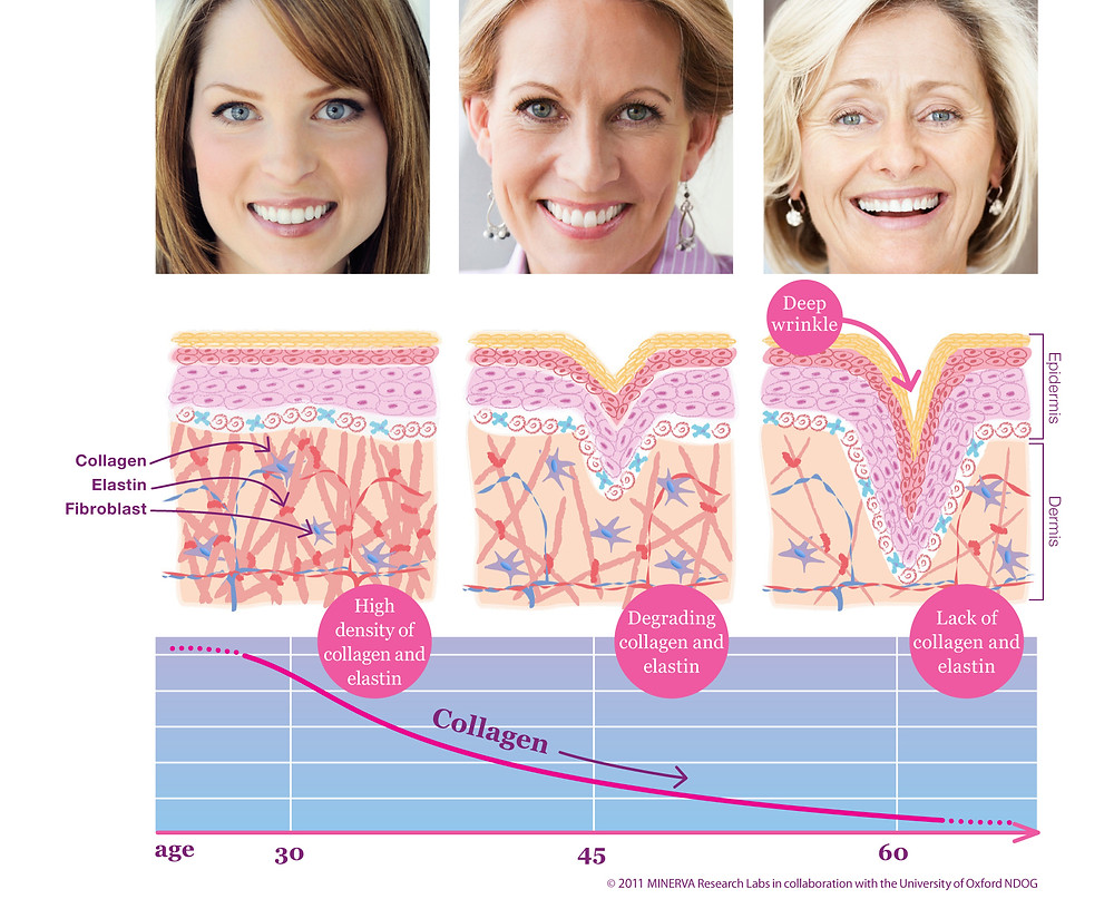 How collagen diminishes with age.