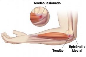 Posição anatômica do epicôndilo medial e tendão flexor acometido