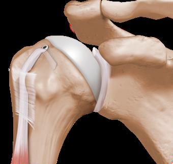 Tenodese do bíceps