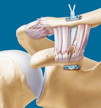 Tratamento com Endobutton (técnica minimamente invasiva)