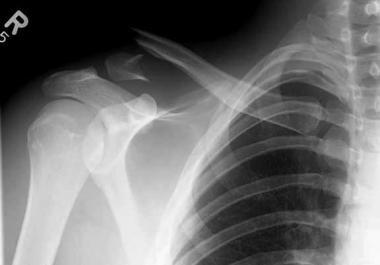 RX com fratura do terço distal da clavícula