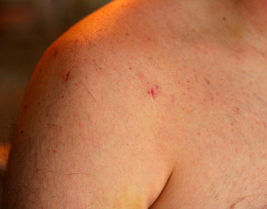 Cicatriz dos portais artroscópicos