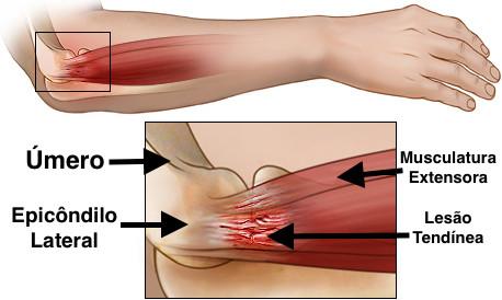 Anatomia da região do epicôndilo lateral