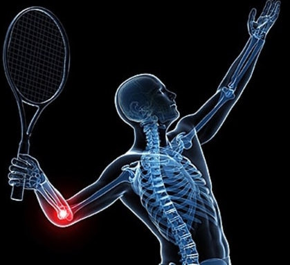 Cotovelo do tenista
