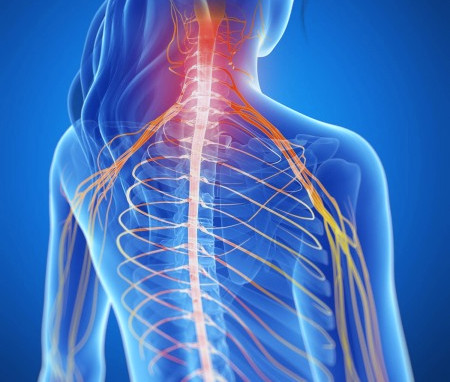 Alterações cervicais causando dor nos ombro