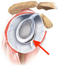 Lesão do lábrio da glenóide em outro ângulo