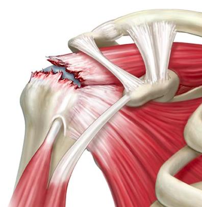 Lesão do tendão supraespinal