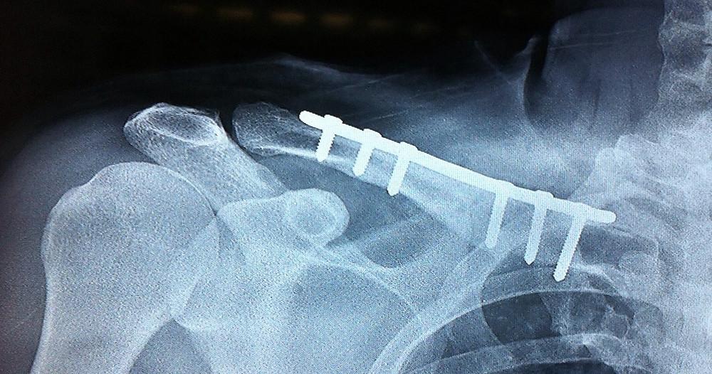 Tratamento cirúrgico de fratura do terço médio com placa bloqueada e parafusos
