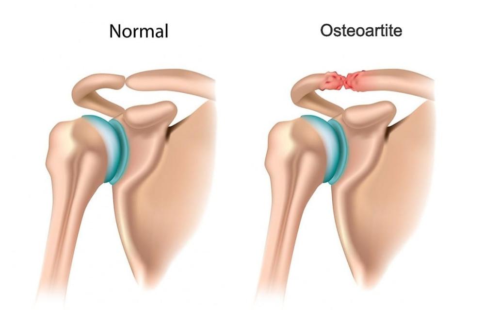 Osteoartrite acromioclavicular