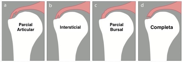 Diferentes tipos de lesões do manguito rotador