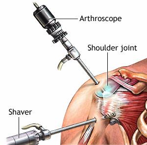 Modelo ilustrativo da artroscopia