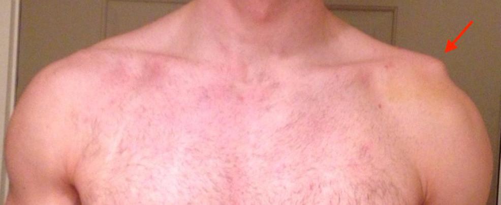 Aparência do ombro com LAC