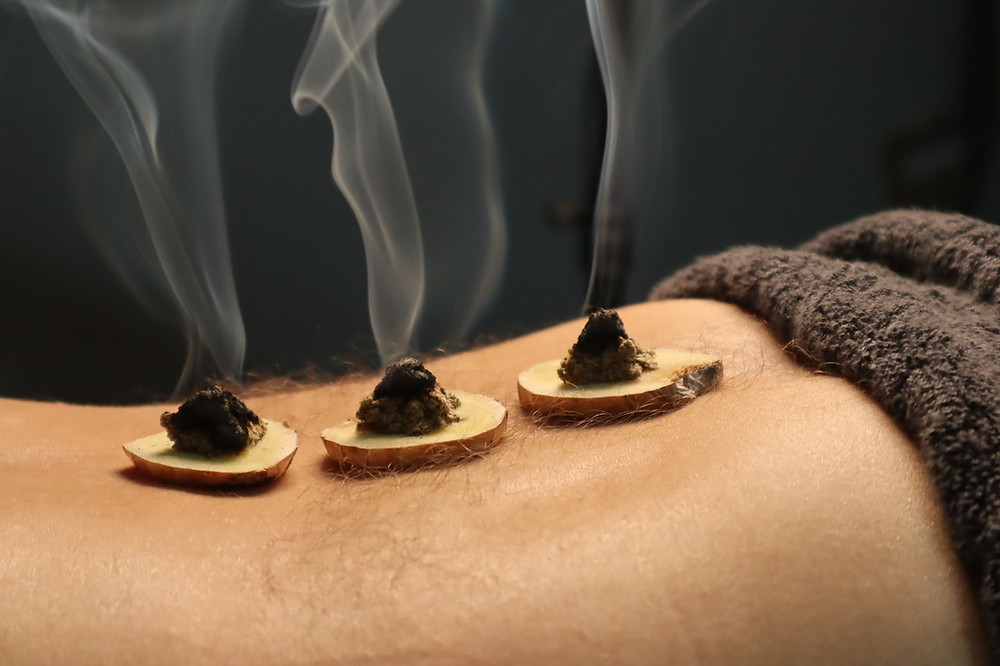 Picture of Clearwater Moxibustion Treatment
