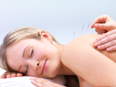 Picture of Woman Getting Acupuncture
