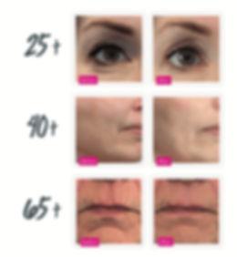 dermatude-before-after_edited.jpg