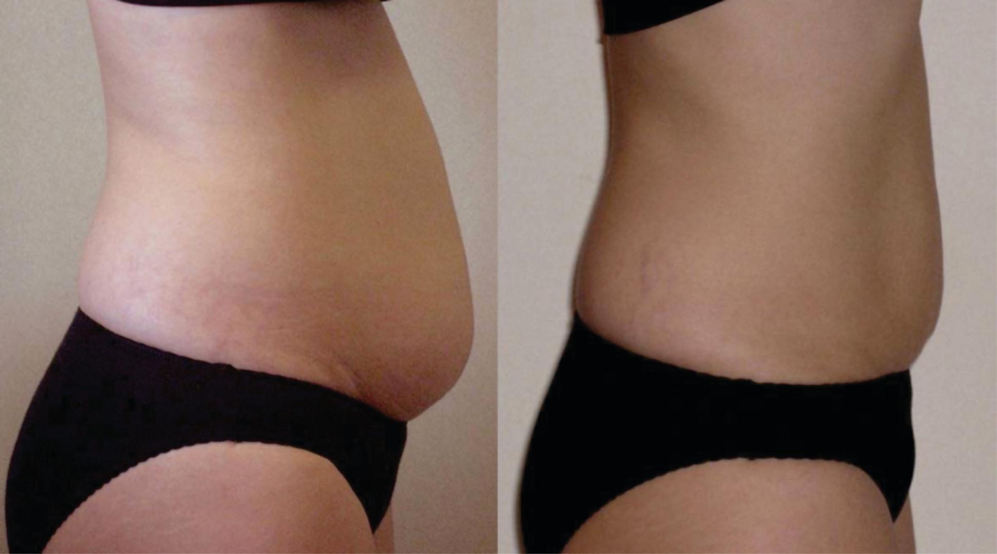 Tummy10Results.jpg