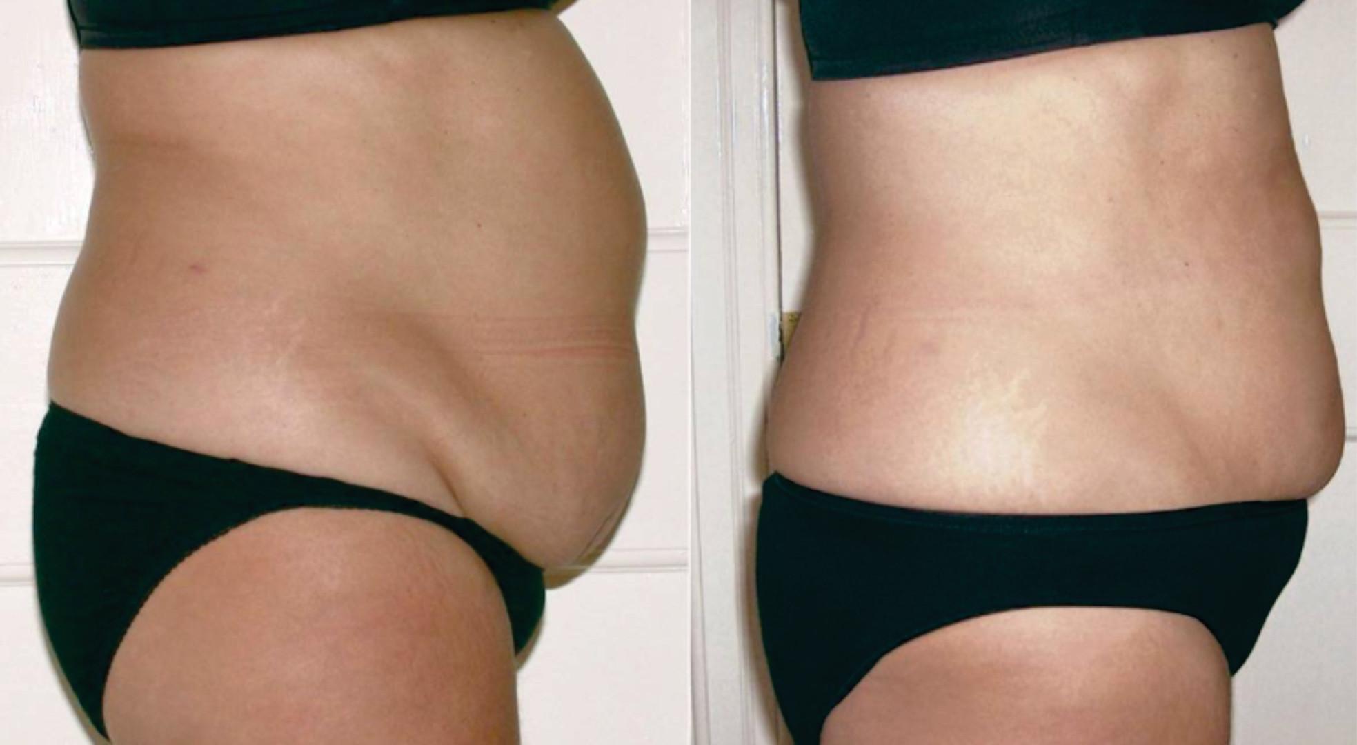 Tummy8Results.jpg