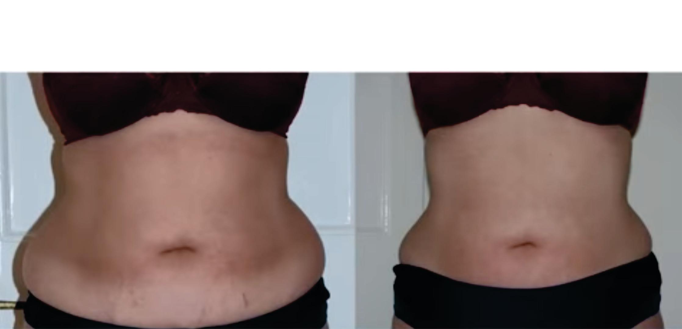 Tummy3Results.jpg