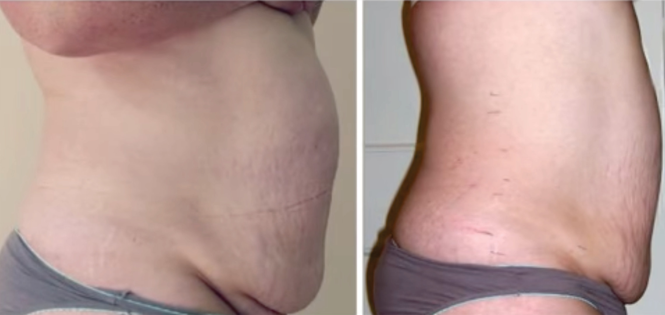 Tummy5Results.jpg