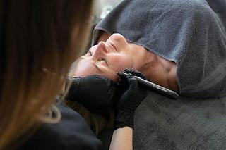 plasma-pen-beauty-treatment-1024x683.jpg