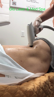Accent prime fat reduce