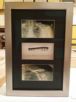 Surgery Picture and Metal Plate Piece