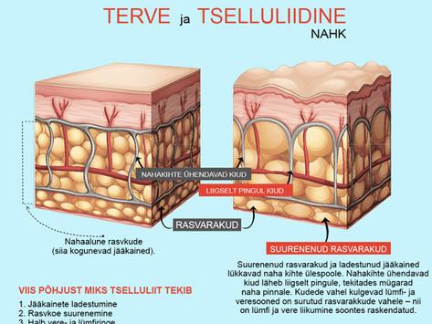 Miks tekib tselluliit ja kuidas rullmassaaž seda kaotab.