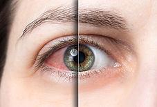 Sindrome dell'occhio secco. Oculista Dott. Abd El Ghani. Studio oculistico a Roma.
