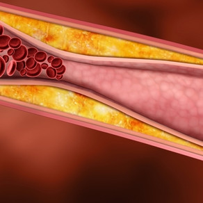 Recent research reignited interest in inflammation, a major player in heart disease.