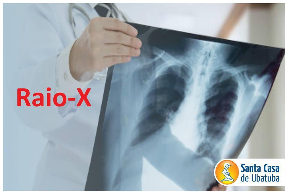 Mão de médico segurando um raio x
