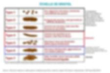 manon touati bonheur en fleur crohn sur la voie de la guérison maladie de crohn rch rémission guérir alimentation saine thérapeute holistique psychomotricienne psychomotricité naturopathie naturopathe féculents colle poisons amidon les féculents : des poisons pour l'organisme maladies auto immunes chroniques lyme sclérose en plaque seignalet amidons index glycémique sucres lents rapides alimentation vivante crue céréales blé gluten légumineuses fruits alimentation saine intestins microbiote animaux croquettes paléo vegan végétarien perméabilité intestinale ben hicaubert natural hygie florian gomet toxines miracle de la détoxination anticancer