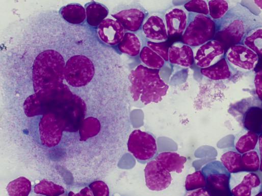O płytkach krwi słów kilka - część I - trombocytopoeza