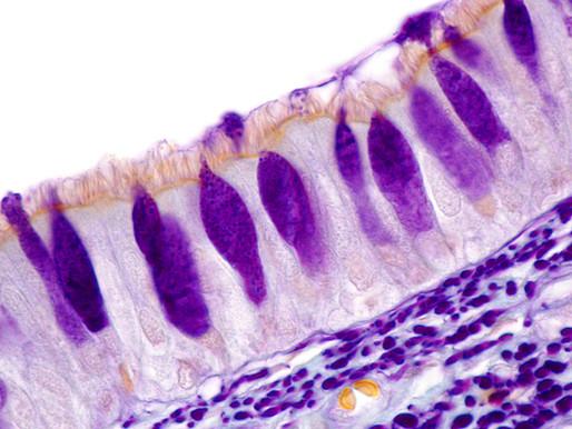 Czym są komórki kubkowe? Jaką pełnią rolę?