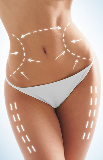 Liposuction Greenville, SC, Liposuction Spartanburg, SC, Carolina Plastic Surgery
