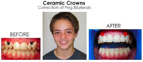 ceramic crowns.jpeg