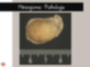 Méningiome: anatomopathologie