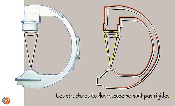 Radioscopie: Elasticité de l'appareil