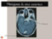 Méningiome du sinus caverneux