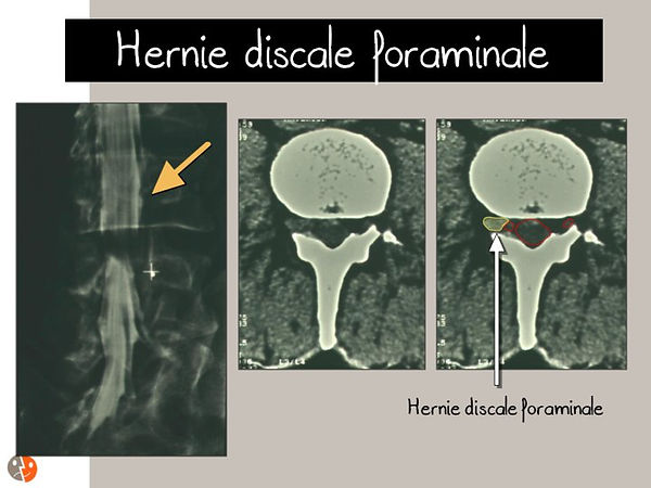 Hernie discale foraminale