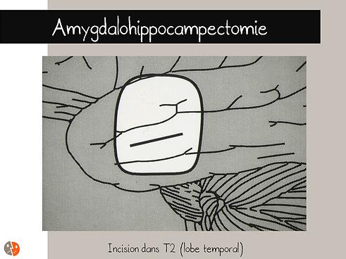 Incision de T2 pour amygdalohippocmpectomie