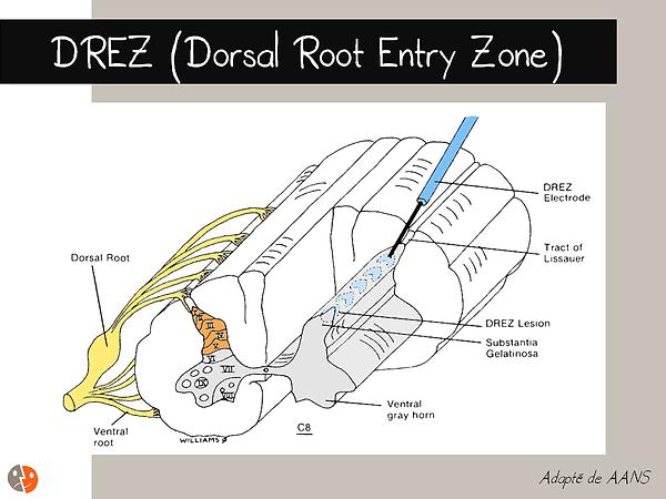 DREZ: Schéma anatomique